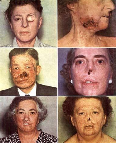 Facial cancers