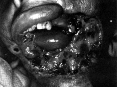 A tricho tumor